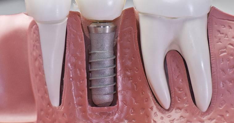 Ripristinare il nostro equilibrio dentale con l'inserimento di un impianto